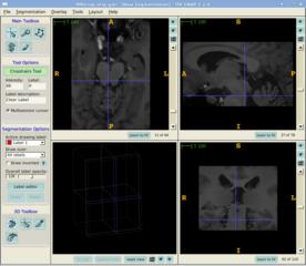 Screenshots of package itksnap