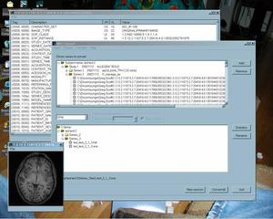 Screenshots of package mriconvert