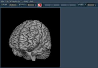 Screenshots of package mricron