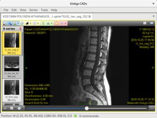 Screenshots of package ginkgocadx